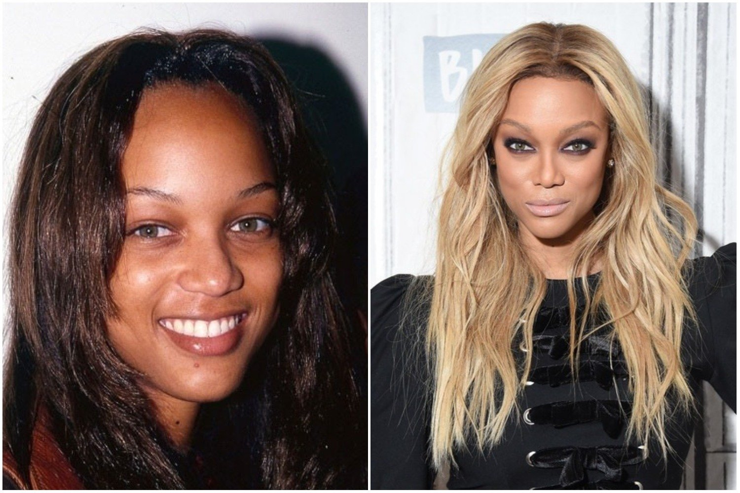 Tyra Banks before after
