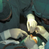 rhinoplasty operation