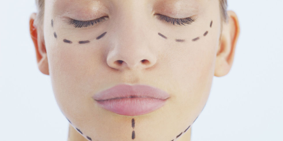 10-things-to-consider-before-getting-plastic-surgery