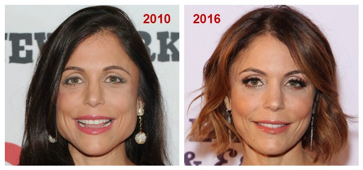 Jaw Botox The Secret To Real Housewife Bethenny Frankel S