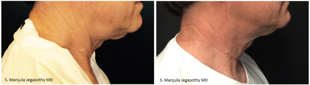 before and after kybella to the neck