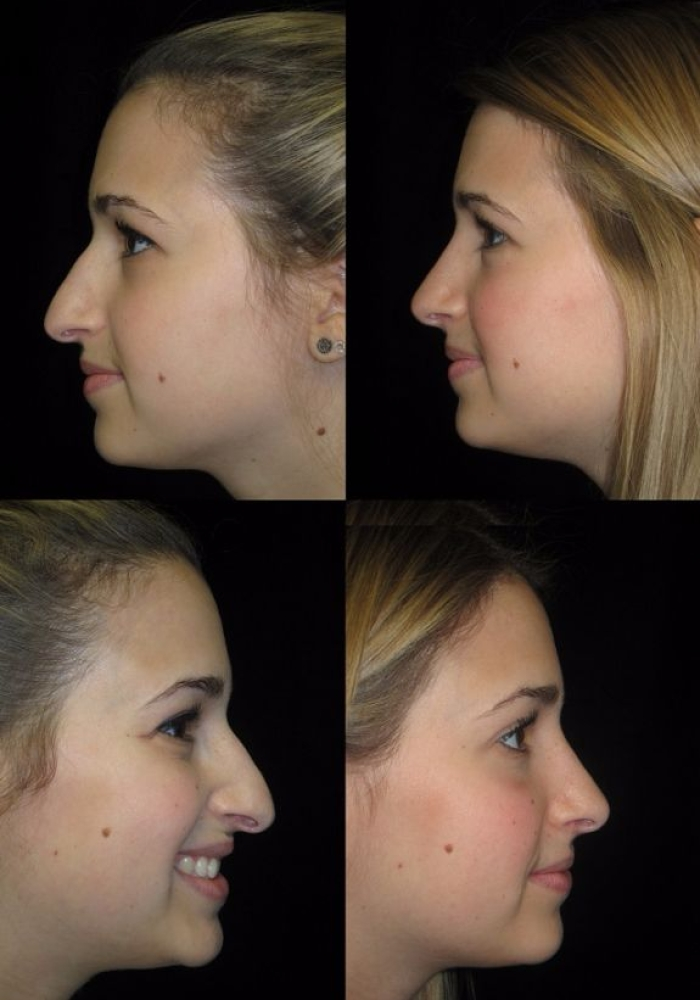 rhinoplasty-before-after-kanodia-1