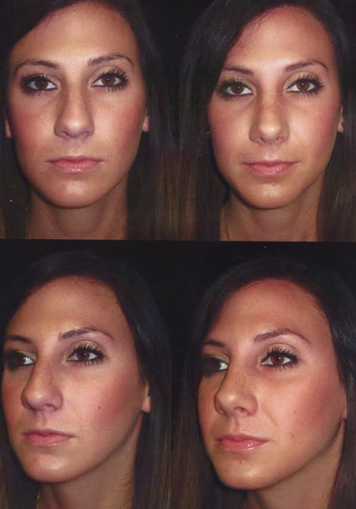 rhinoplasty-before-after-kanodia-2
