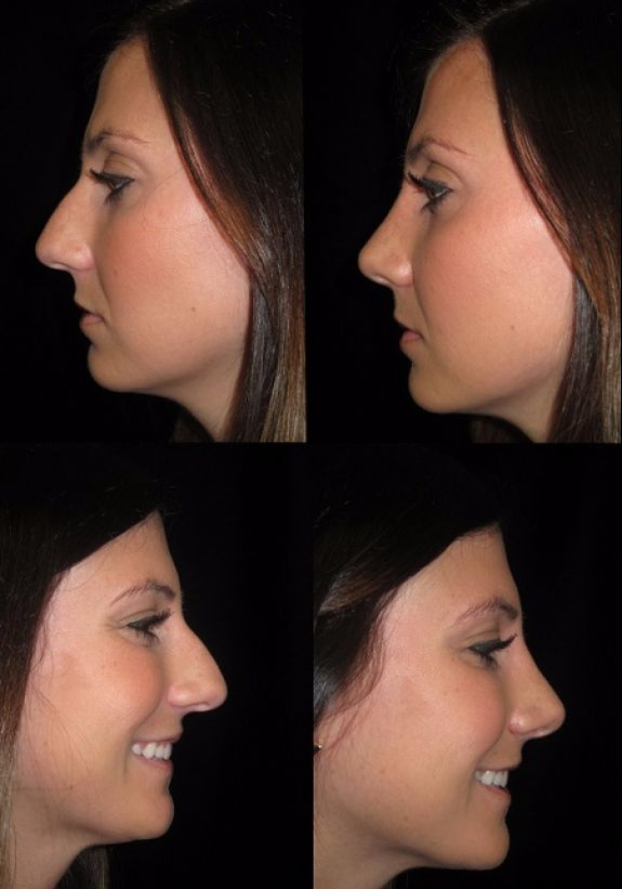 rhinoplasty-before-after-kanodia-3