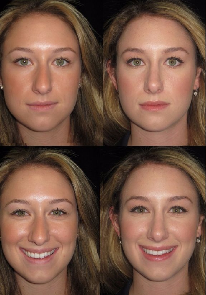 rhinoplasty-before-after-kanodia-4