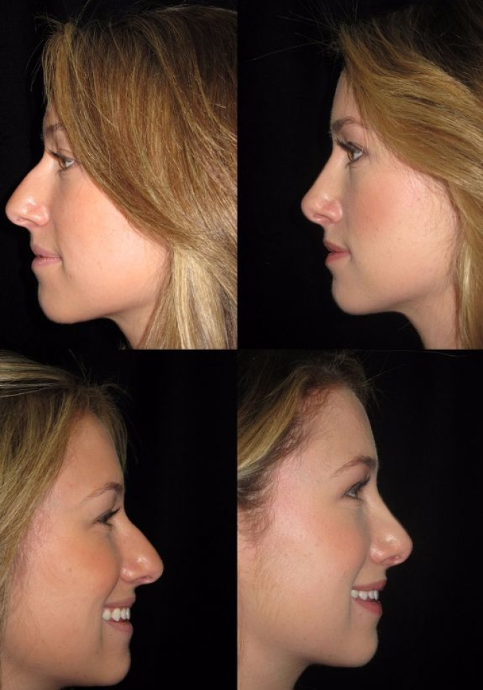 rhinoplasty-before-after-kanodia-5