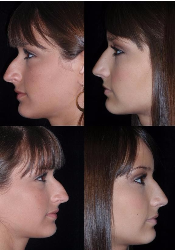 rhinoplasty-before-after-kanodia-6