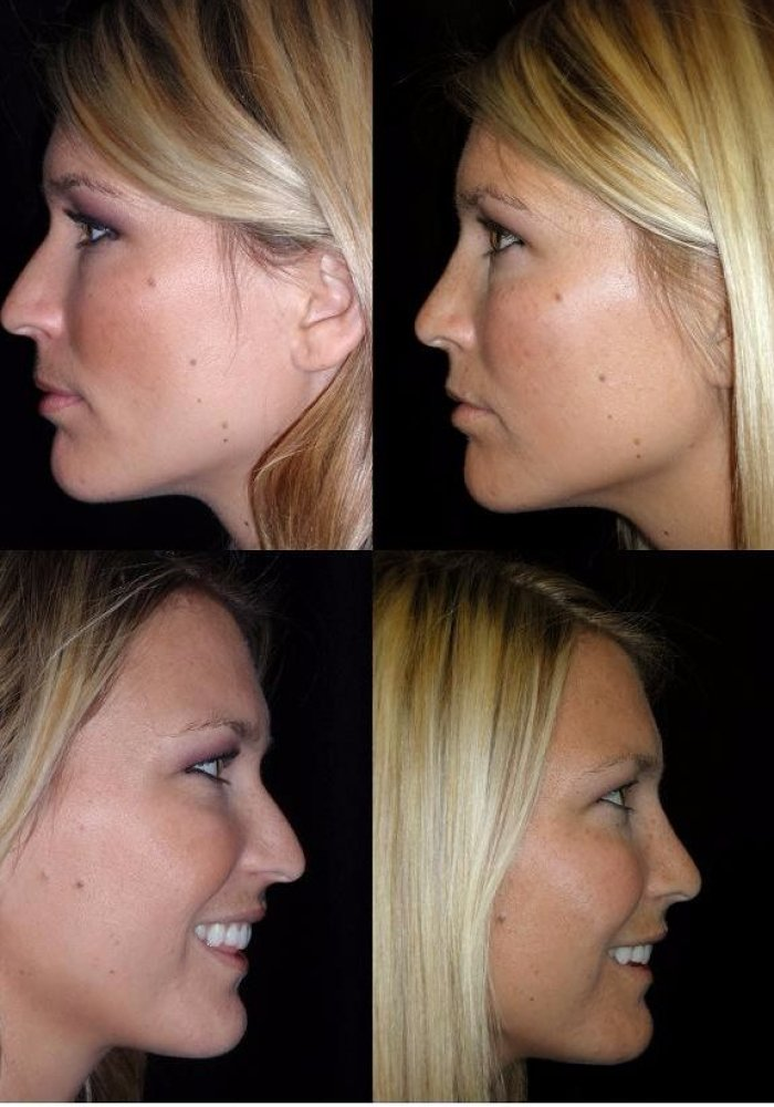 rhinoplasty-before-after-kanodia-7