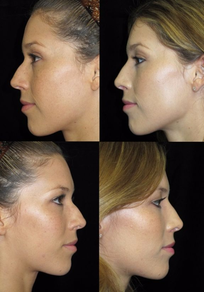 rhinoplasty-before-after-kanodia-8
