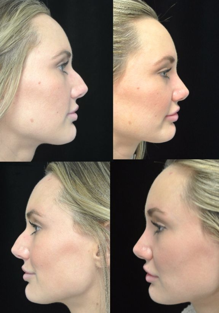 rhinoplasty-before-after-kanodia-9