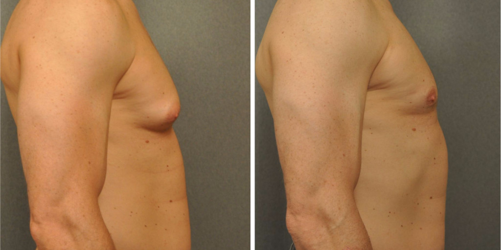 Park city breast reduction