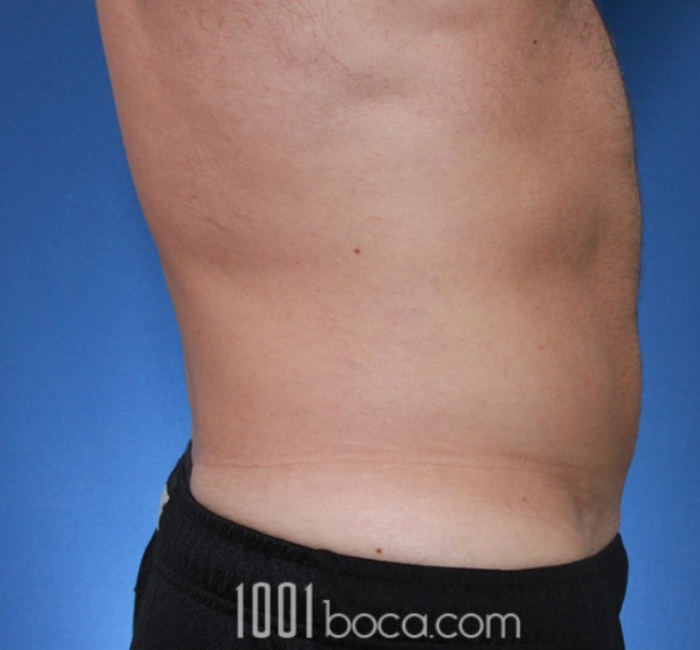 Coolsculpting Zwivel S Complete Guide To Fat Freezing