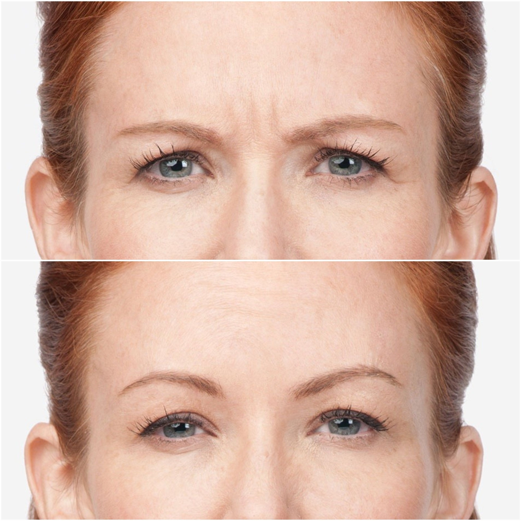 20 Popular Botox Treatment Questions Answered Zwivel
