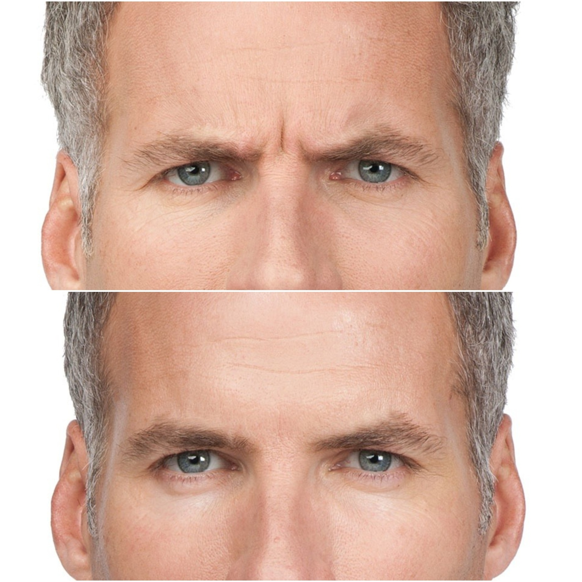20 popular botox treatment questions answered zwivel pictures taken before and 7 days after botox treatments for frown lines credits botox cosmetic solutioingenieria Gallery