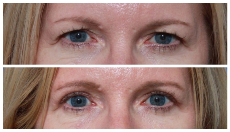 Cosmetic Eyelid Surgery: 13 Interesting Facts about