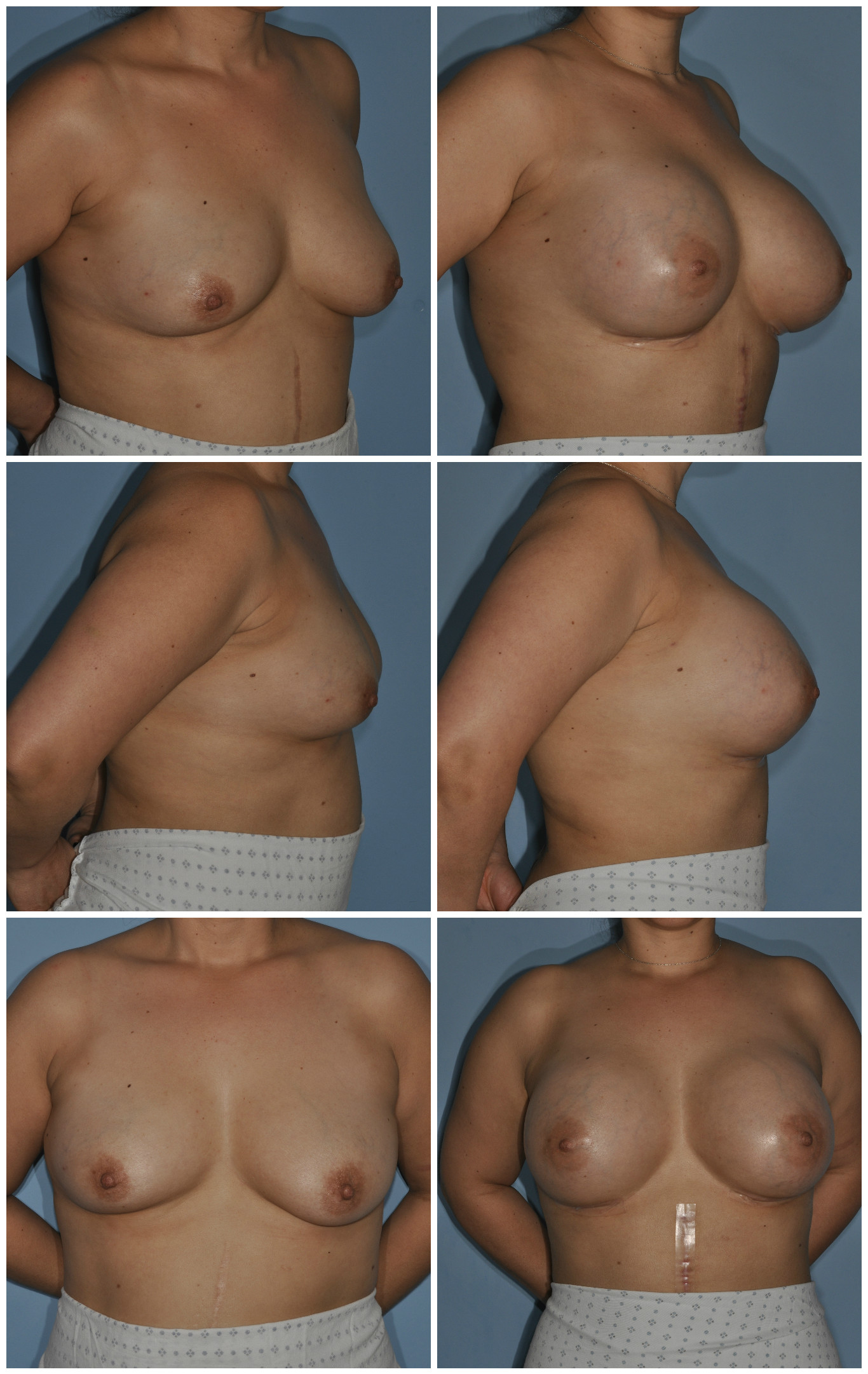 Breast Implants With Fat 71