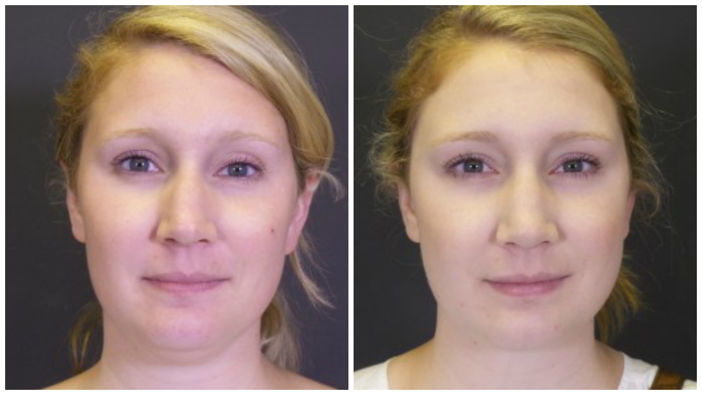 chin-lipo-before-after-1