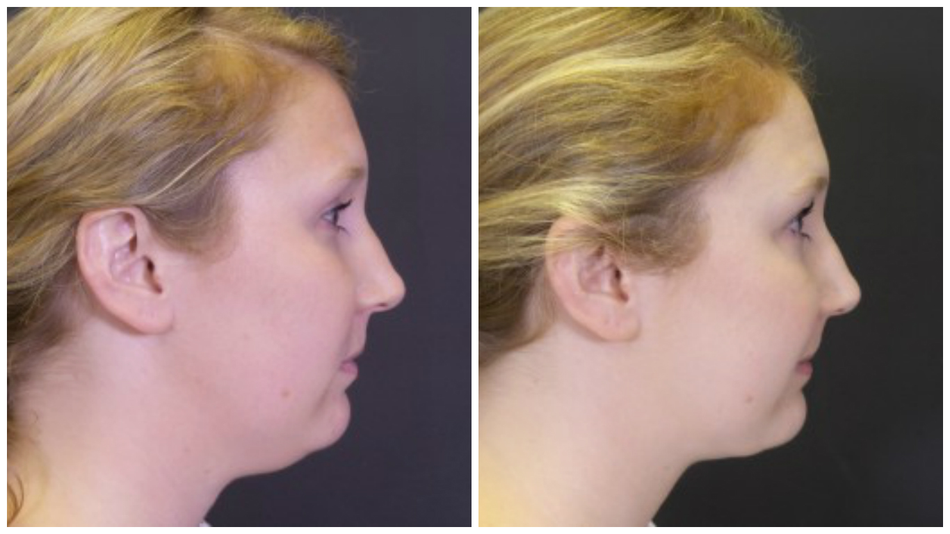 chin-lipo-before-after-2