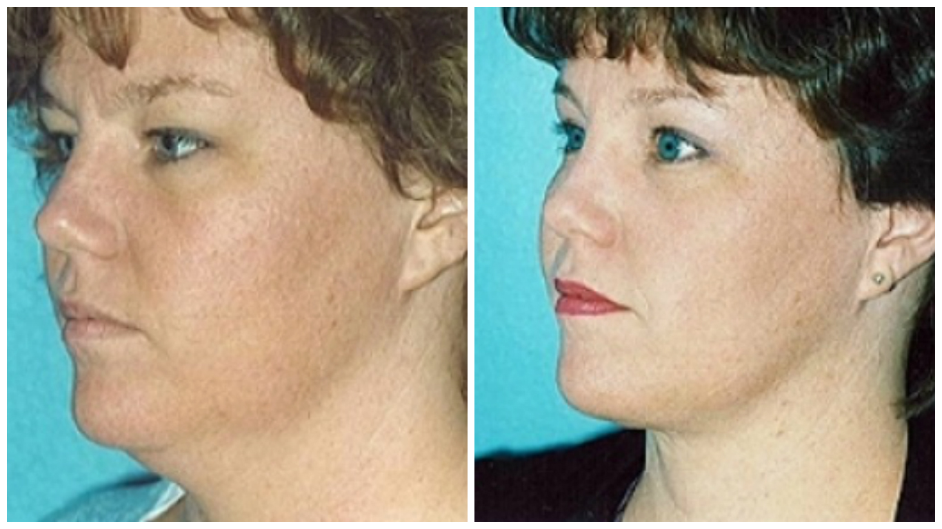10Effective Methods toFight aDouble Chin That Are Worth Trying