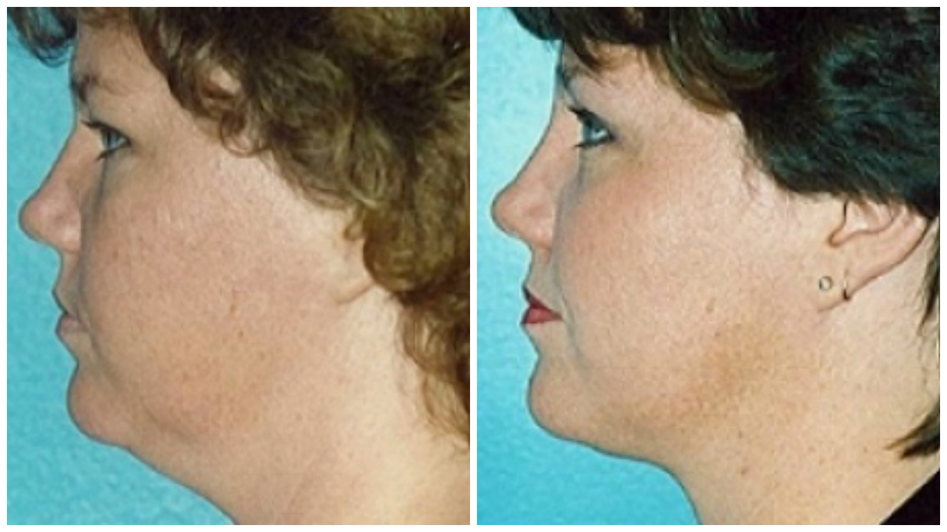 chin-lipo-before-after-4