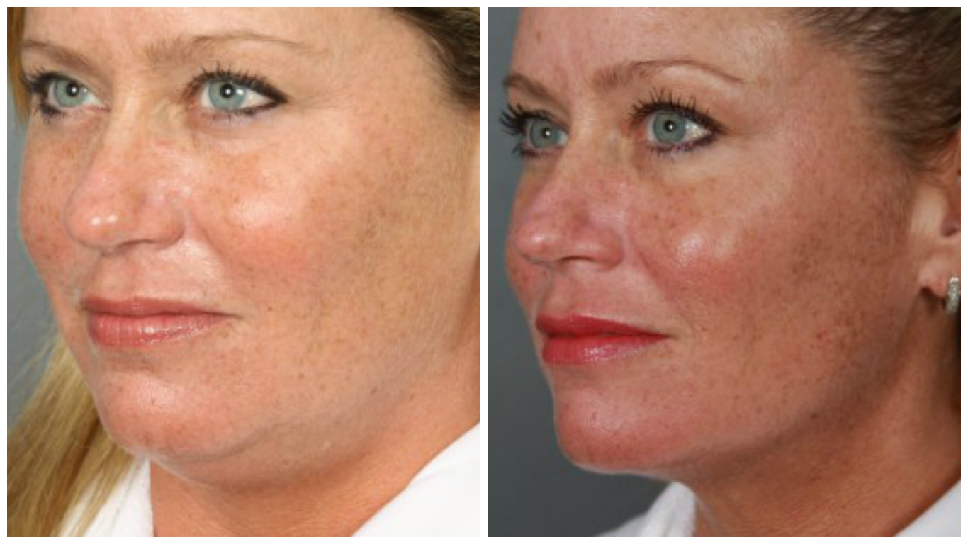 Facial liposuction before and after images 882