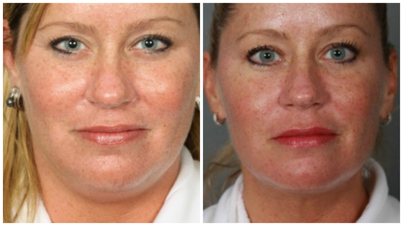 chin-lipo-before-after-6