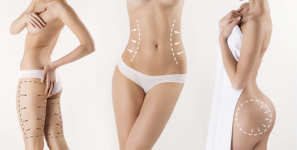 Laser Liposuction Do The Pros Outweigh The Cons