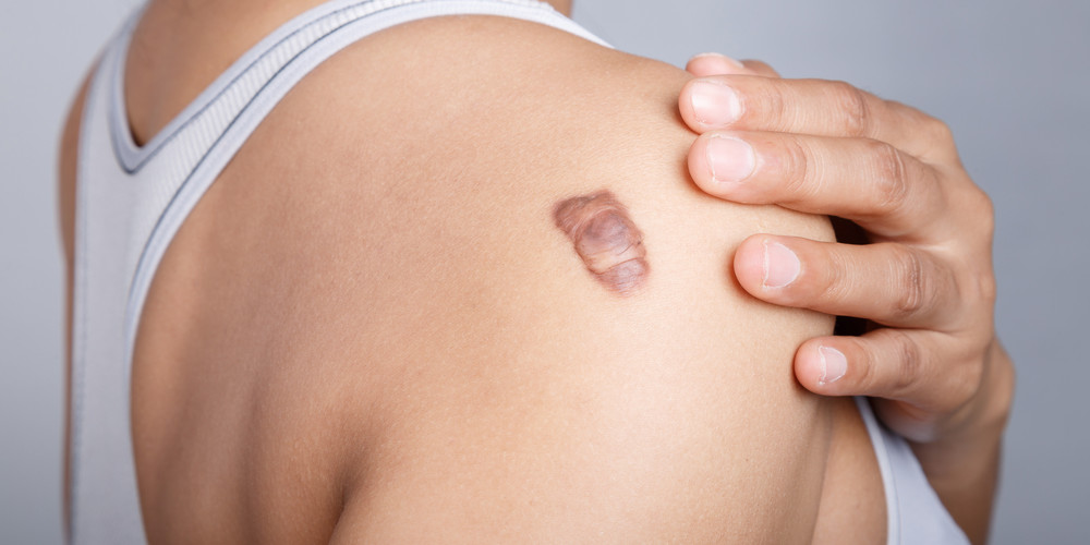 keloid scars: how to treat a wound that dosen't know it has healed, Skeleton