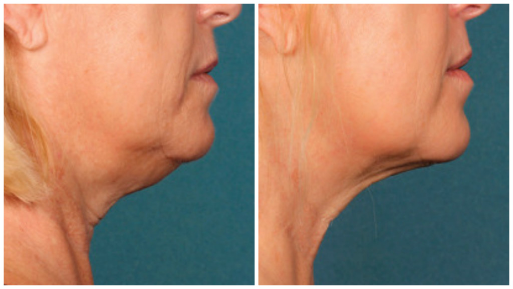 kybella, before and after