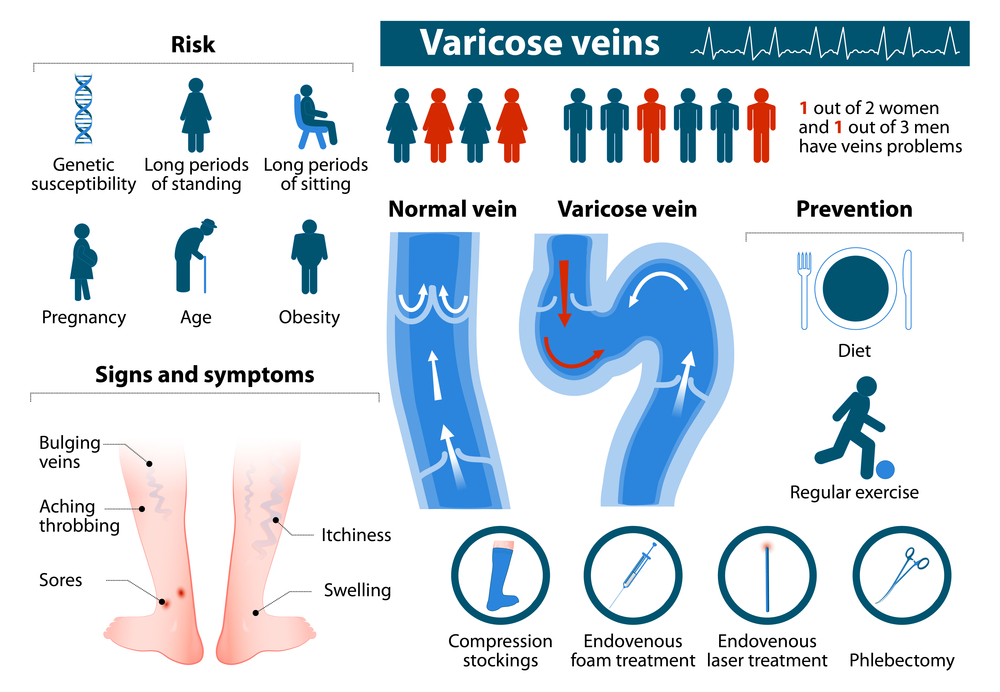 Varicose vein Homeopathy treatment India