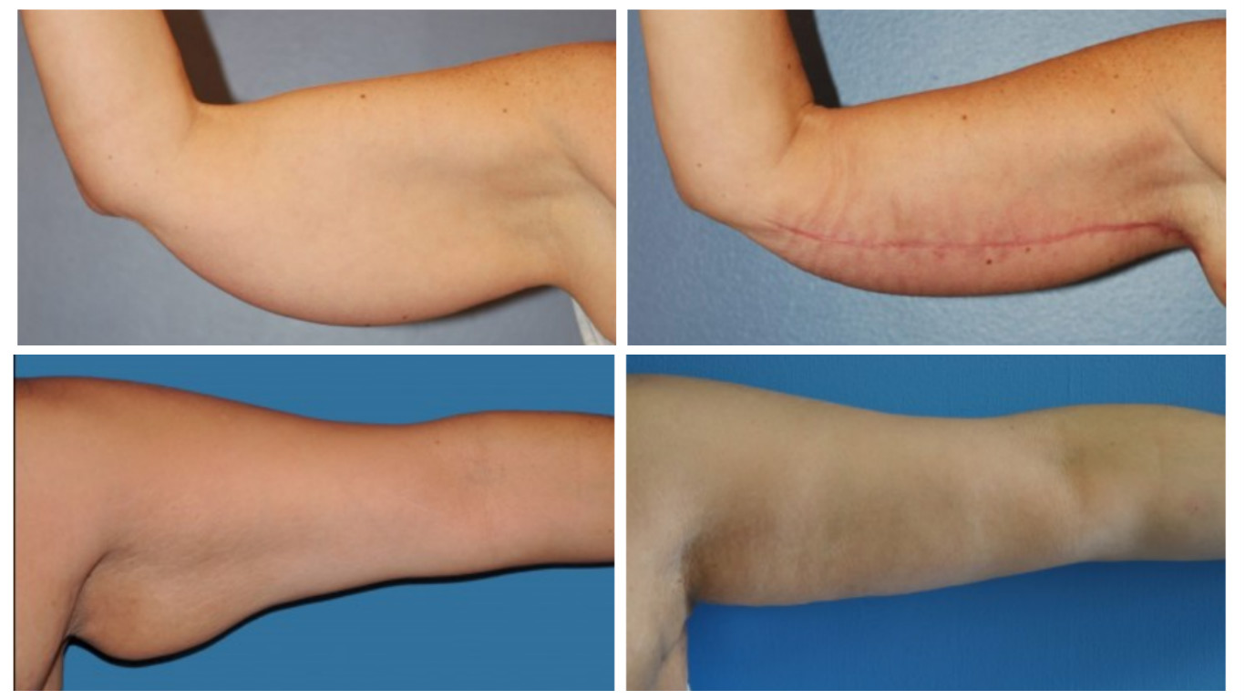 Scars From Upper Arm Lifts : Flabby upper arms brachioplasty may be your best skin