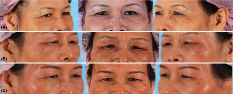Botox Side Effects: Most Common, How Long Do They Last, and