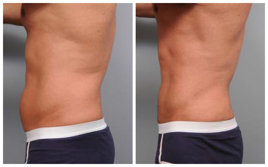 How Much Fat Can Liposuction Remove