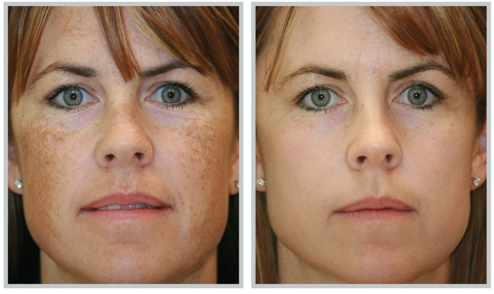 Melasma Treatments that Work: Expert Tips and Advice