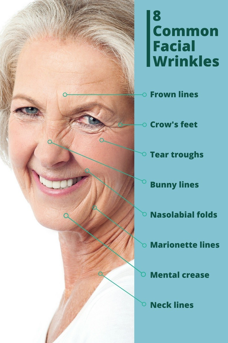 common facial wrinkles
