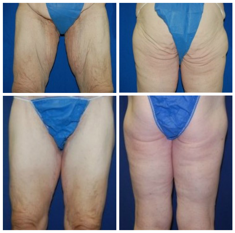 thigh lift before-after