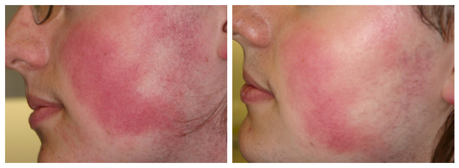 before and after laser rosacea treatments