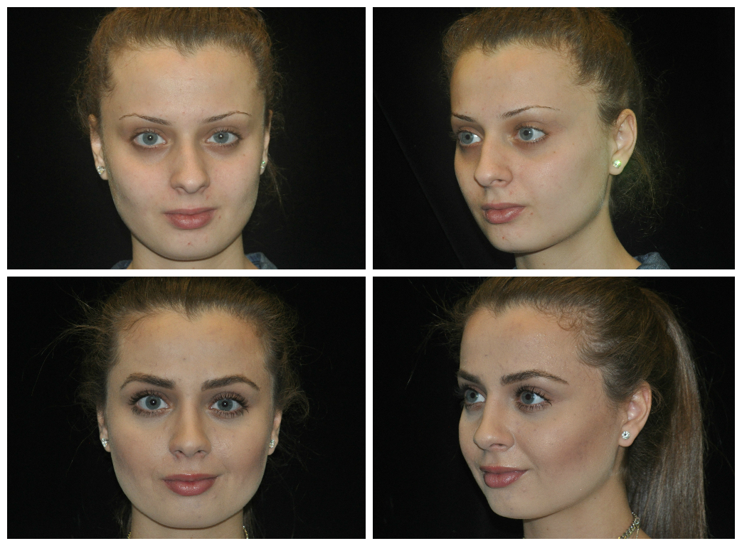 before and after eyebrow grafting