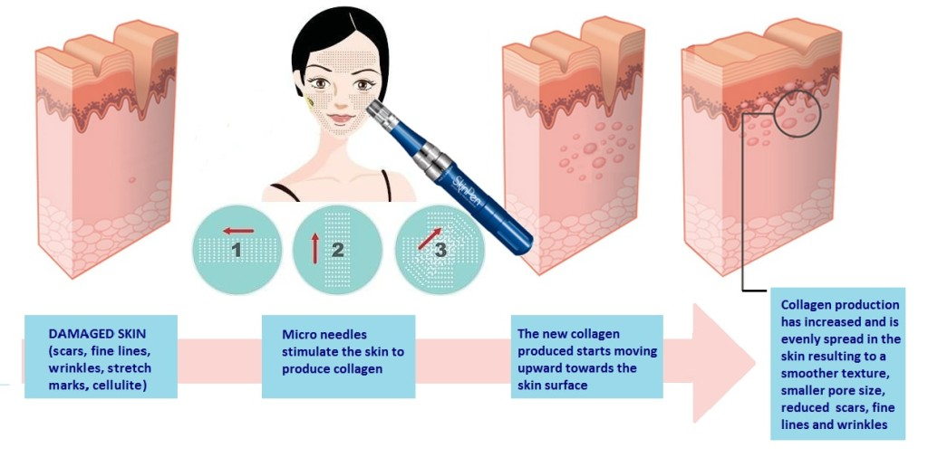 how microneedlingg works