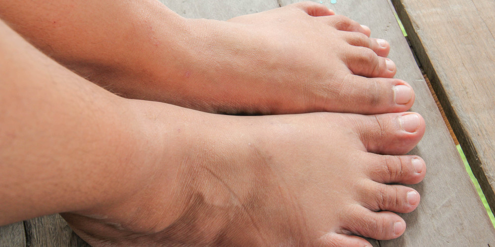 cankles