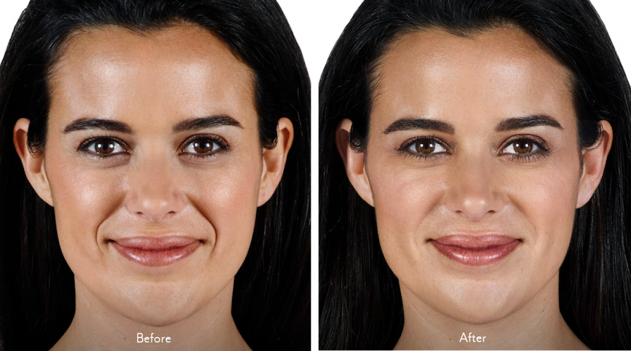 Juvederm Vollure: Treatment Areas, Before and After