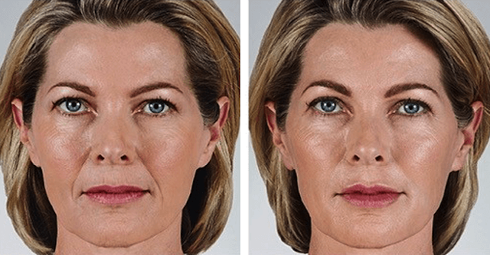 Juvederm Vollure Treatment Areas Before And After Recovery And Cost