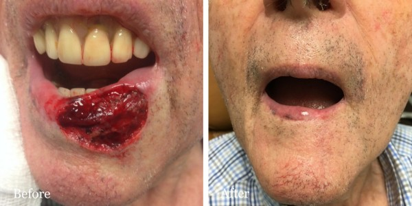 before and after mohs reconstruction lip