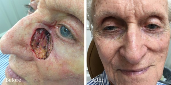 before and after mohs reconstruction nose
