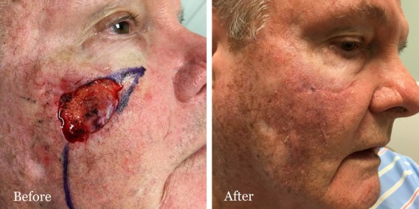 before and after mohs reconstruction face