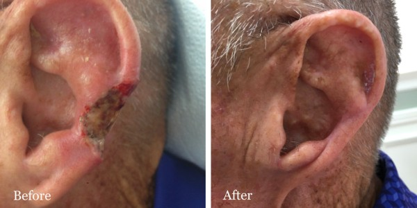 MOHs Surgery 6