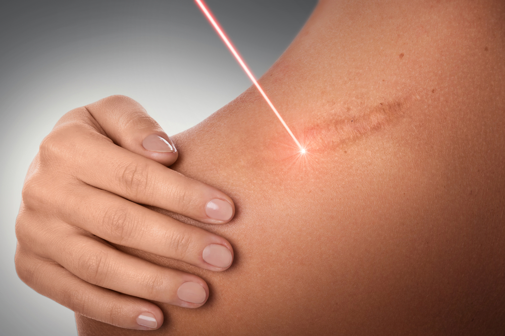 Surgical Scars How To Minimize And Treat Their Appearance
