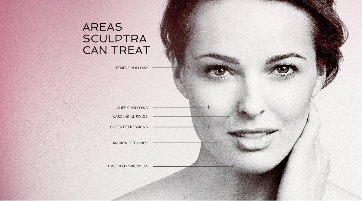 areas sculptra can treat