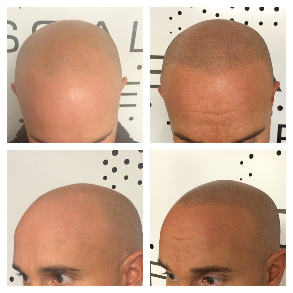 Before and after scalp micropigmentation.