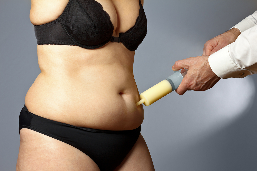 Liposuction:  Risks and Benefits